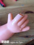Odkusnutý prst